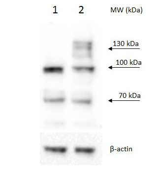 Western blot using anti/PRP40b antibodies