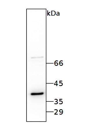 western blot using anti-RBP40 / 38 kDa RNA-binding Protein antibodies