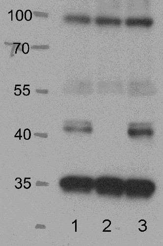 western blot using anti SnrK 2.2/3/6 antibody