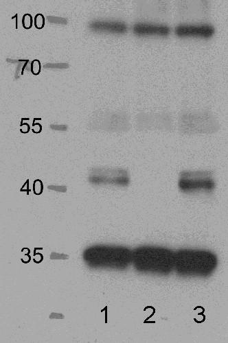 western blot using anti SnrK 2.2/3/6 antibody