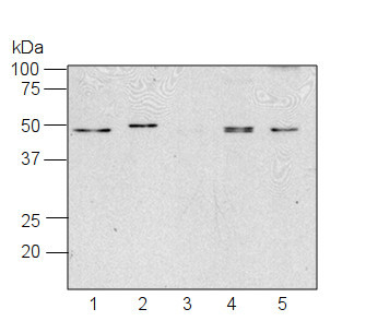 western blot using anti-RPS1 antibodies