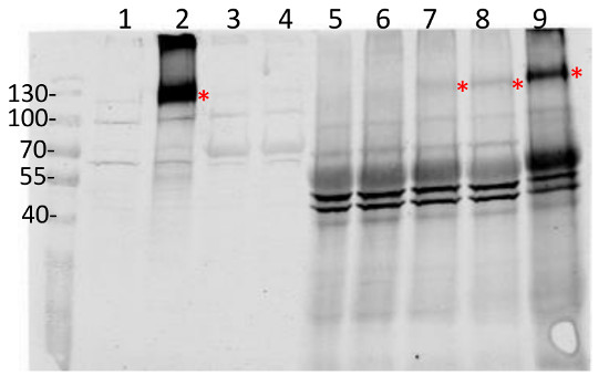 western blot using anti-RBOHD polyclonal antibodies