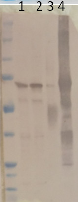 western blot using anti-PGM1 antibodies