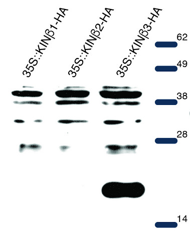 western blot using anti-AKIN beta 3 polyclonal antibodies