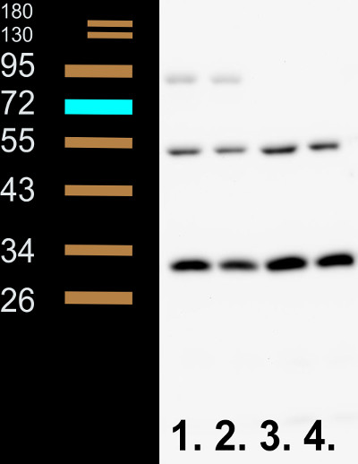 western blot using anti-Phyl antibodies