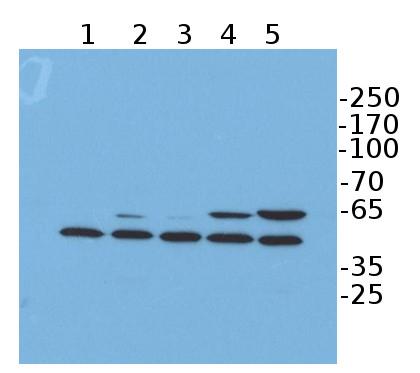 western blot using anti-FLAG antibody
