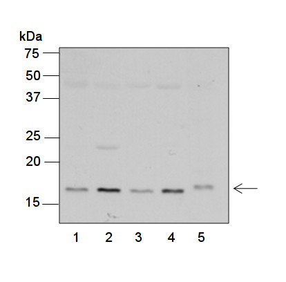 western blot using anti-plant RPS7 antibodies