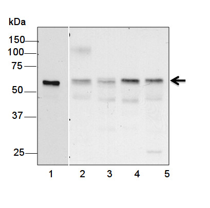 western blot using anti-plant KARI antibodies