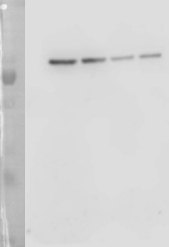 western blot using anti-TKL antibodies