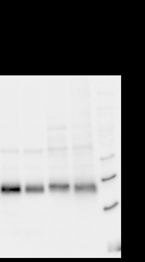 Western blot using anti-FNR antibody