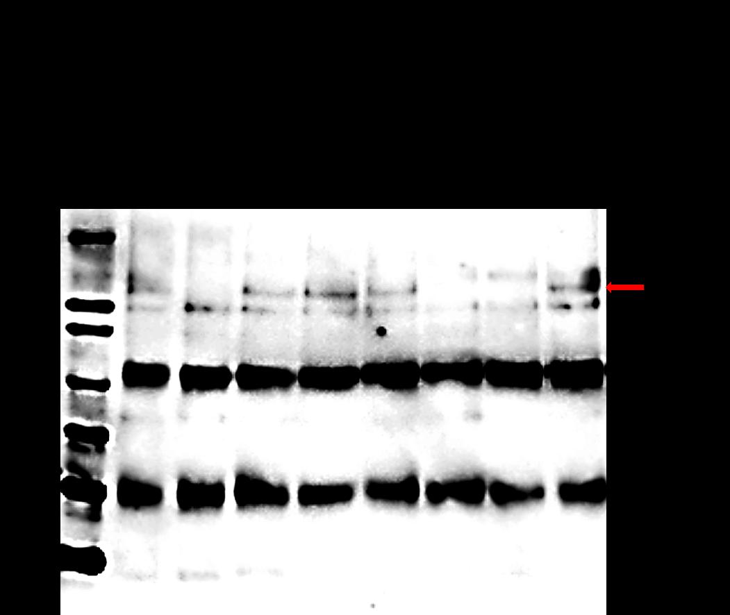 Western blot using anti-SPSA1 antibody
