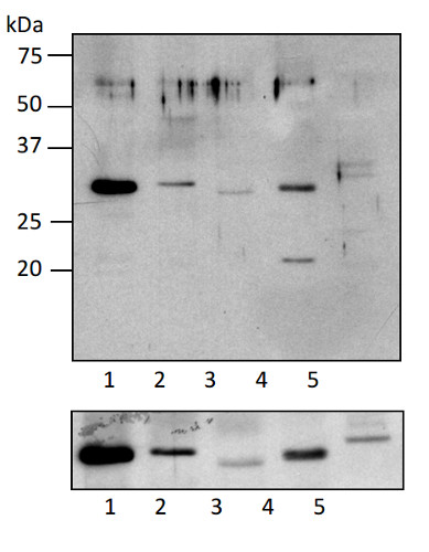 western blot using anti-RPS5 antibodies