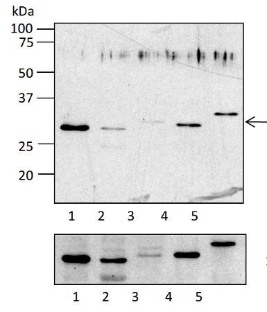 western blot using anti-RPL4 antibodies (chloroplastic)