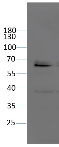 Western blot using anti-PARP2 antibodies