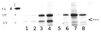 Western blot using anti/PPH1/TAP38 antibodies