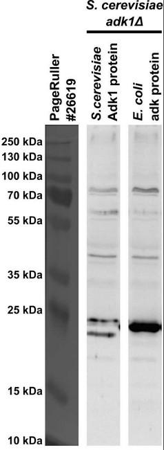 Western blot using anti-ADK antibodies