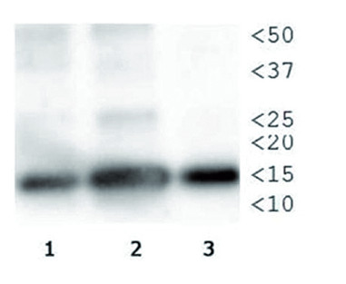 Western blot using anti-H3T3pK4me1 antibodies