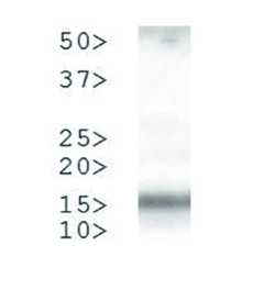 western blot using anti-H3T3pK4me2 antibodies