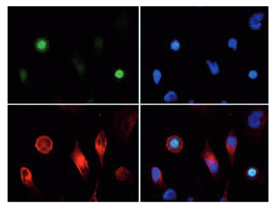 immunofluorescence using anti-phospho-acetyl-Histone H3  antibodies