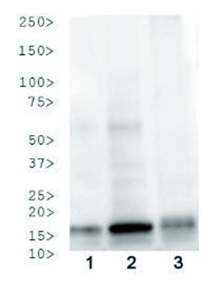 western blot using anti-phospho-acetyl-Histone H3  antibodies