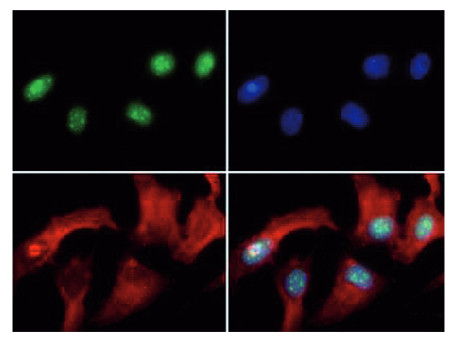 immunofluorescence using anti-H3R8me2(asym) | Histone H3 (asym-dimethyl Arg8) polyclonal antibodies