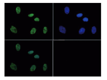 immunofluorescence using anti-H3S10pT11p | Histone H3 (p Ser10, p Thr11)  polyclonal antibodiesi