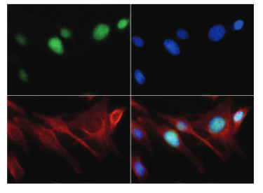 immunofluorescence using anti-H3K18me1 | Histone H3 (monomethyl Lys18)  polyclonal antibodies