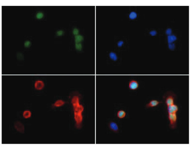 Immunofluorescence using anti-H3K18me2 | Histone H3 (dimethyl Lys18)  polyclonal antibodies
