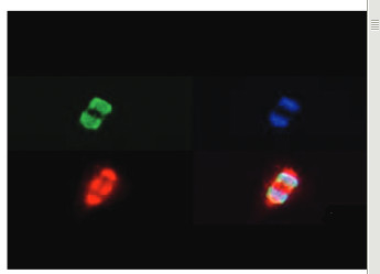immunofluorescence using anti-H3K27me3S28p | Histone H3 (trimethylated Lys27, p Ser28) polyclonal antibodies