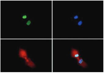 immunofluorescence using anti-H3R2me2(sym)K4me2 | Histone H3 (sym-dimethylated Arg2, dimethyl Lys4)  polyclonal antibodies