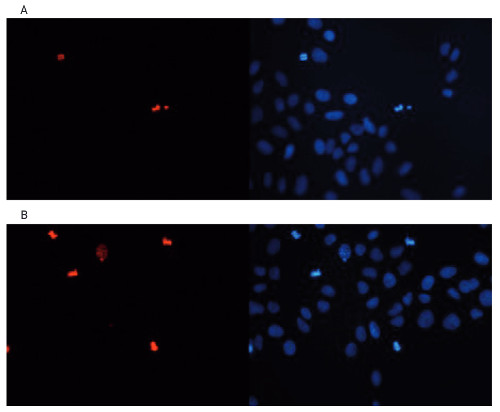Immunofluorescence using anti-H3S10p | Histone H3 (p Ser10) polyclonal antibodies