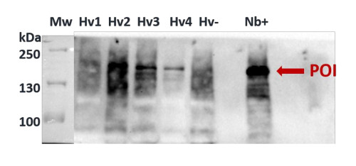 Western blot using polyclonal anti-Cas9 antibodies