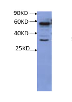 Western blot using anti-RS1 antibodies