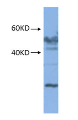 western blot using anti-RPS1 (mitochondrial) rabbit antibodies