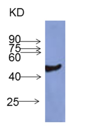 western blot using anti-FBA, cytoplasmic aldolase antibodies