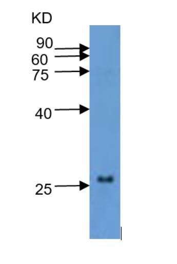 western blot using anti-WRKY10 antibodies