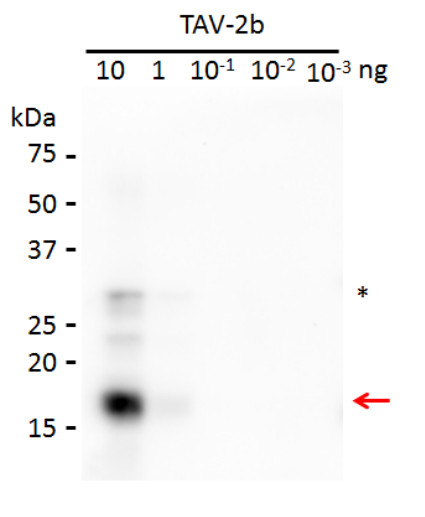 western blot using anti-2b protein [Tomato aspermy virus] antibody