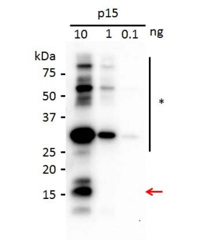 western blot using anti-p15 [Peanut clump virus] antibodies