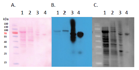 Western blot using anti-GST antibodies