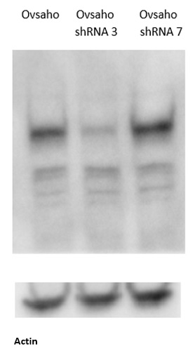 Western blot using anti-LRIG-1 antibodies on ovarian cancer