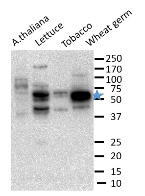 Western blot using anti-eIF5 antibodies