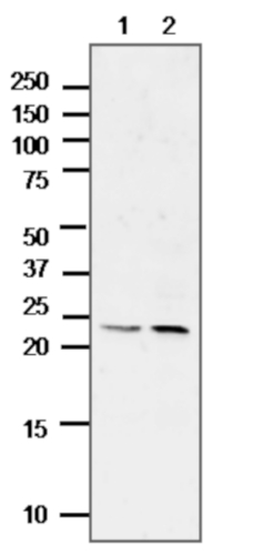 Western blot using anti-ALEU antibodies