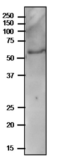 Western blot using anti-PYK10 (internal) antibodies