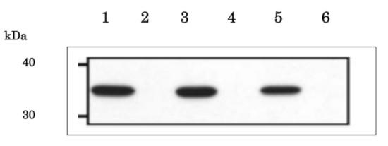 Western blot using anti-PBP1 antibodies