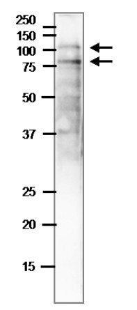 Western blot using anti-NAI2 antibodies