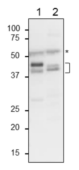 Western blot using anti-plant glutamine synthetase antibodies