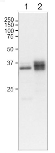 Western blot using anti- plant L-FNR2 antibodies