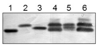Western blot with anti-FNR1 antibodies on various cellular fractions